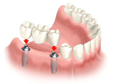 bridge implants